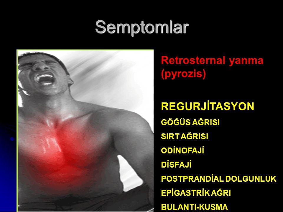 Retrosternal yanma (pyrozis) REGURJİTASYON GÖĞÜS AĞRISI SIRT AĞRISI ODİNOFAJİ DİSFAJİ POSTPRANDİAL DOLGUNLUK EPİGASTRİK AĞRI BULANTI-KUSMA Semptomlar