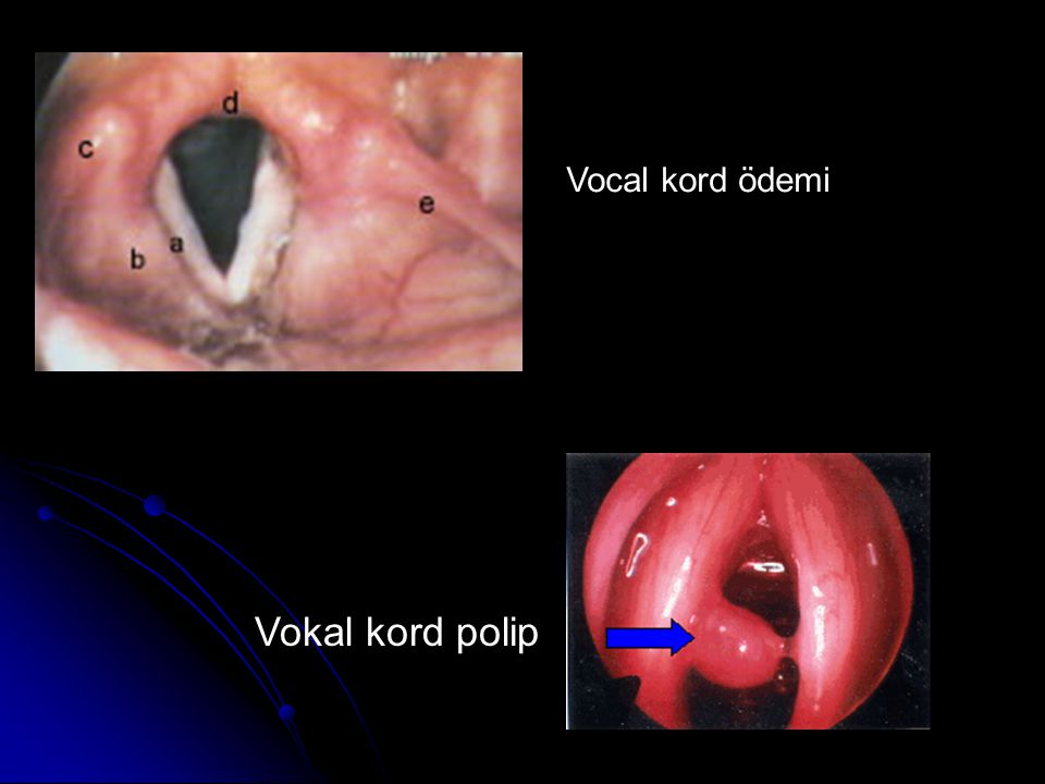 Vokal kord polip Vocal kord ödemi