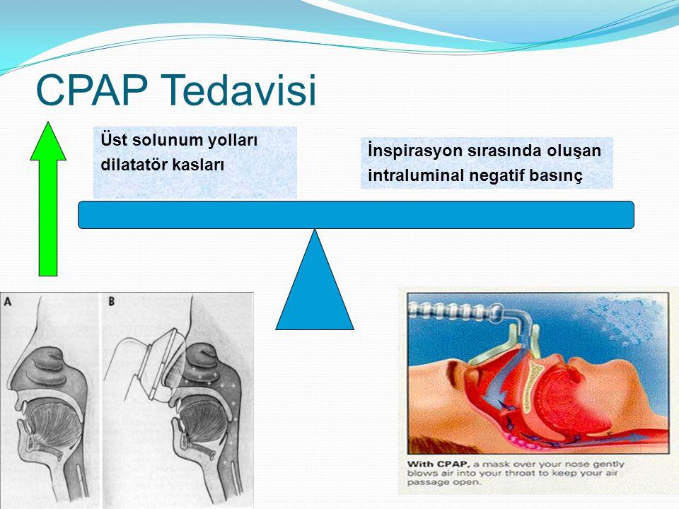 CPAP Tedavisi İnspirasyon sırasında oluşan intraluminal negatif basınç Üst solunum yolları dilatatör kasları