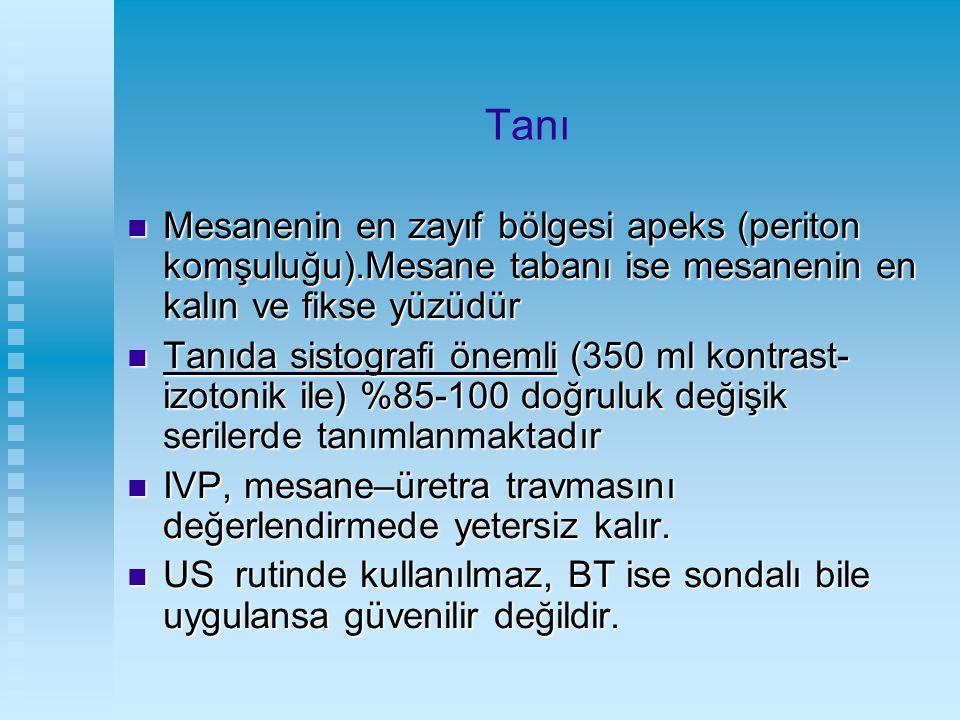 Tanı Mesanenin en zayıf bölgesi apeks (periton komşuluğu).Mesane tabanı ise mesanenin en kalın ve fikse yüzüdür Mesanenin en zayıf bölgesi apeks (peri
