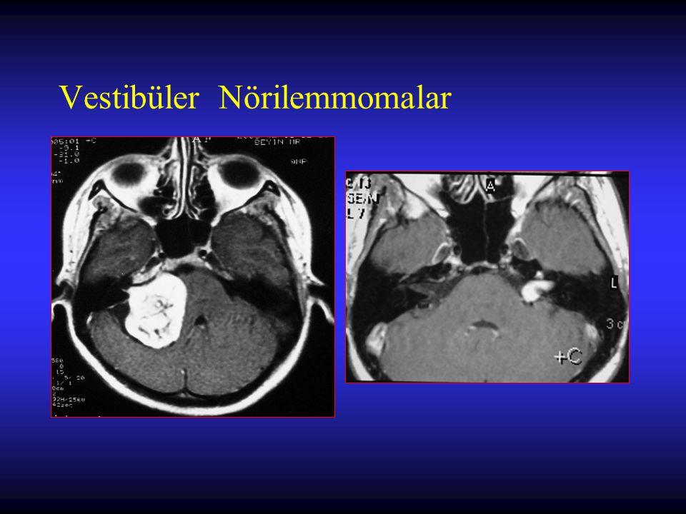 Vestibüler Nörilemmomalar