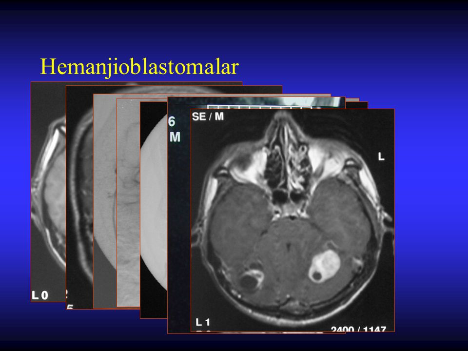 Metastatik Beyin Tümörleri Primer odaklar –akciğer CA –meme CA –malign melanoma –primer orijini bilinmeyenler