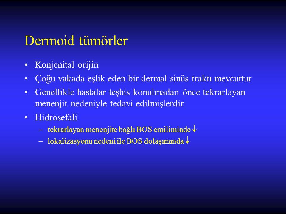 Dermoid tümörler Konjenital orijin Çoğu vakada eşlik eden bir dermal sinüs traktı mevcuttur Genellikle hastalar teşhis konulmadan önce tekrarlayan men