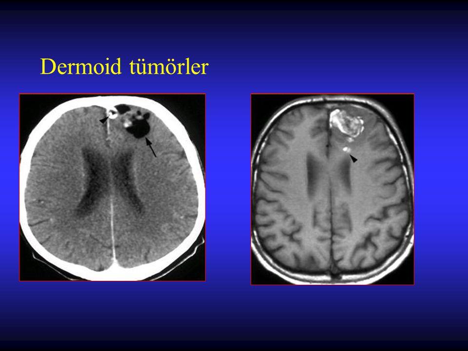 Metastatik Beyin Tümörleri Cerrahi tedavide amaçlar –histolojik tanının konulması –semptomların düzeltilmesi –total rezeksiyon ile lokal kürün elde edilmesi