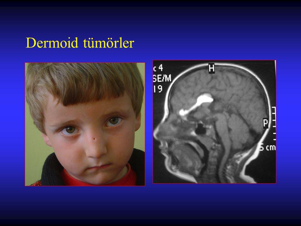 Metastatik Beyin Tümörleri Soliter metastazlarda cerrahi endikasyonlar –Primer odak sessiz –Lezyon kolaylıkla çıkartılabilir lokalizasyonda –Lezyon semptomatik ve hayatı tehdit ediyor –Tanı ile ilgili kuşku