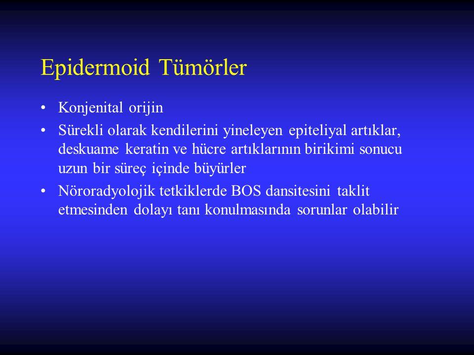 Epidermoid Tümörler Konjenital orijin Sürekli olarak kendilerini yineleyen epiteliyal artıklar, deskuame keratin ve hücre artıklarının birikimi sonucu uzun bir süreç içinde büyürler Nöroradyolojik tetkiklerde BOS dansitesini taklit etmesinden dolayı tanı konulmasında sorunlar olabilir