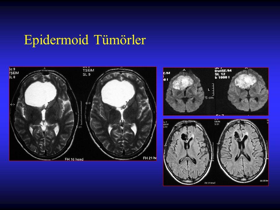 Metastatik Beyin Tümörleri Prognostik faktörler –Metastazların sayısı ve büyüklüğü (kitle etkisi) –SSS dışındaki sistemik kanser hastalığının durumu –Hastanın performans durumu (Karnofsky puanı) –Hastanın yaşı –Kanserin tipi Maracou Y ve ark.:What is the optimal therapy of brain metastasis.