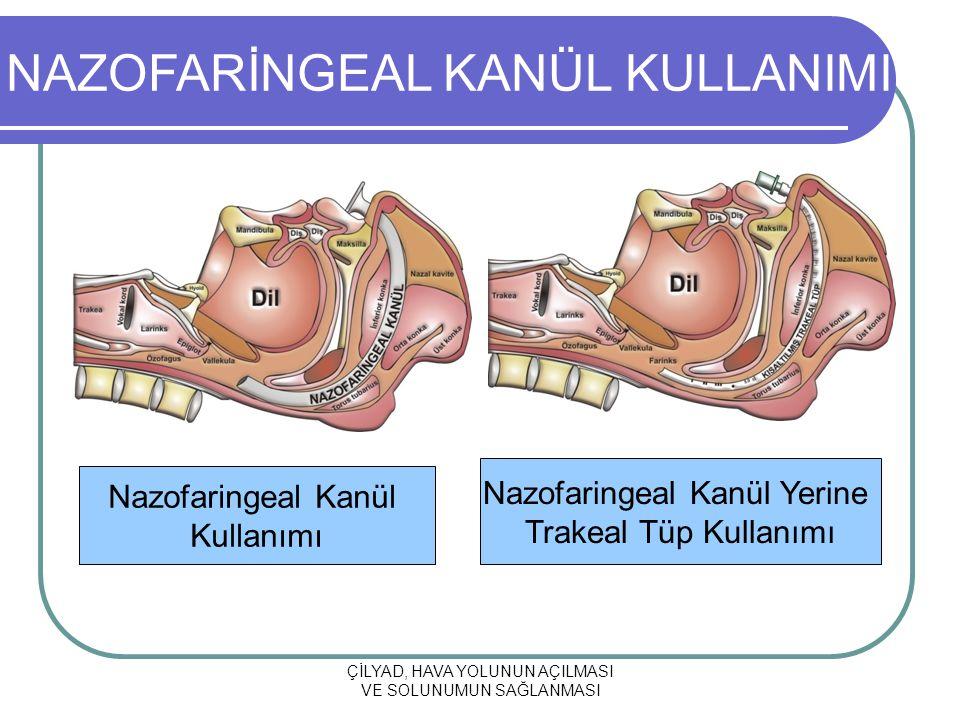 ÇİLYAD, HAVA YOLUNUN AÇILMASI VE SOLUNUMUN SAĞLANMASI Nazofaringeal Kanül Kullanımı Nazofaringeal Kanül Yerine Trakeal Tüp Kullanımı NAZOFARİNGEAL KANÜL KULLANIMI