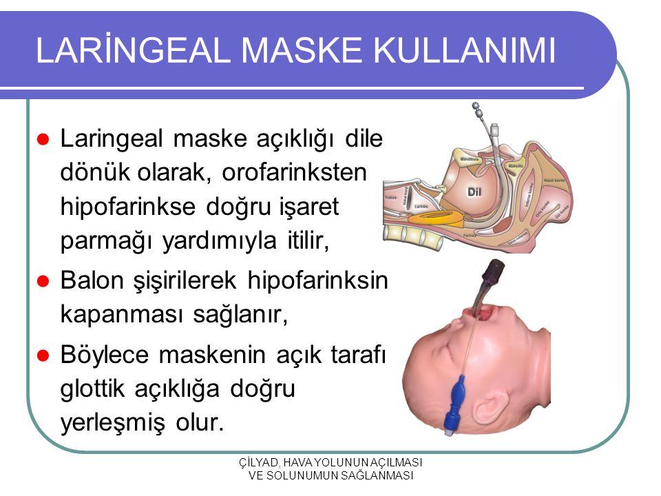 ÇİLYAD, HAVA YOLUNUN AÇILMASI VE SOLUNUMUN SAĞLANMASI LARİNGEAL MASKE KULLANIMI Laringeal maske açıklığı dile dönük olarak, orofarinksten hipofarinkse