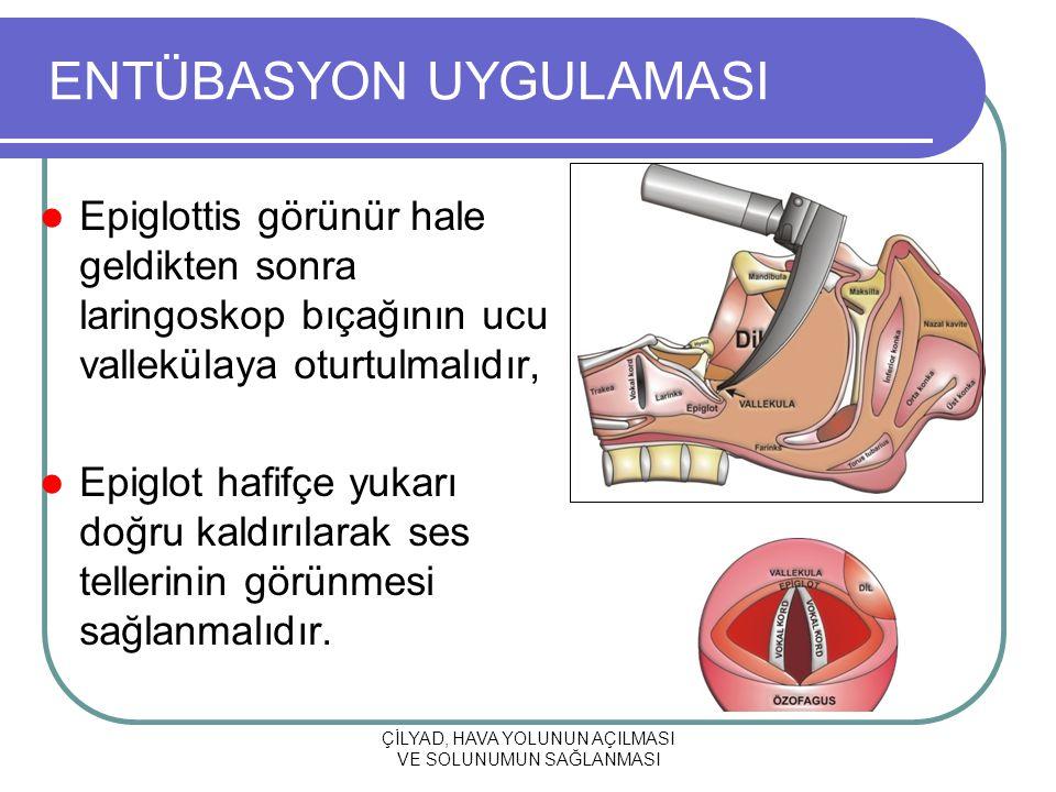ÇİLYAD, HAVA YOLUNUN AÇILMASI VE SOLUNUMUN SAĞLANMASI ENTÜBASYON UYGULAMASI Epiglottis görünür hale geldikten sonra laringoskop bıçağının ucu vallekül