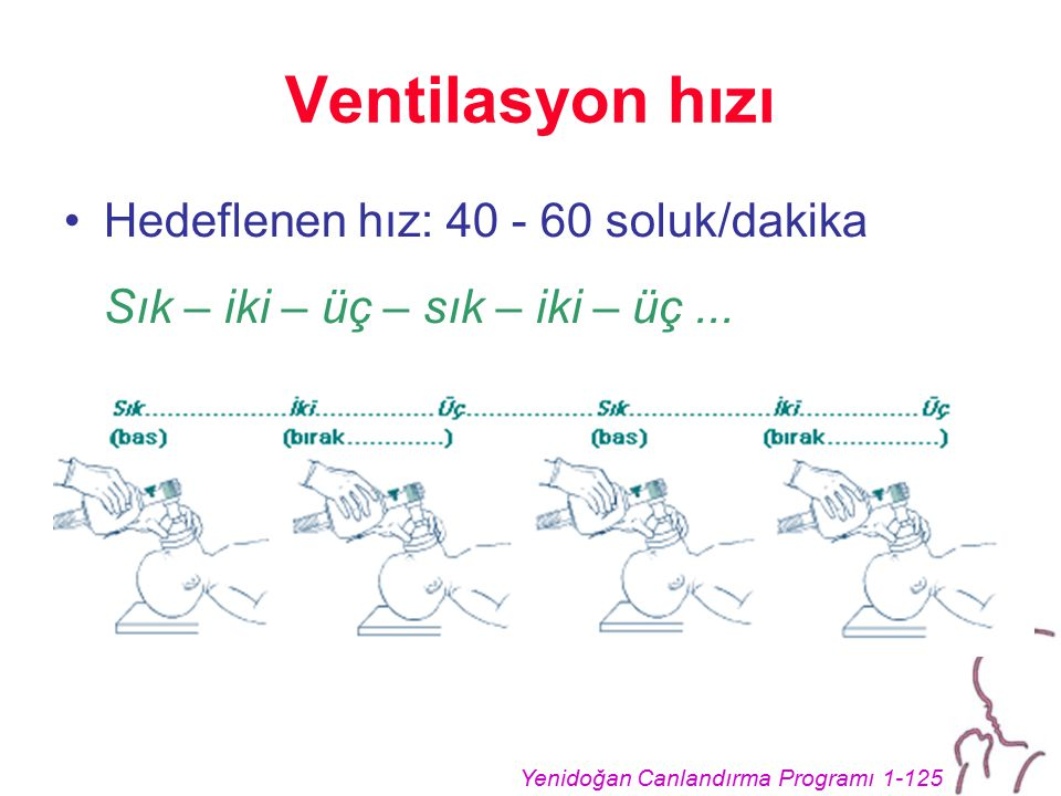 Yenidoğan Canlandırma Programı 1-125 Ventilasyon hızı Hedeflenen hız: 40 - 60 soluk/dakika Sık – iki – üç – sık – iki – üç...