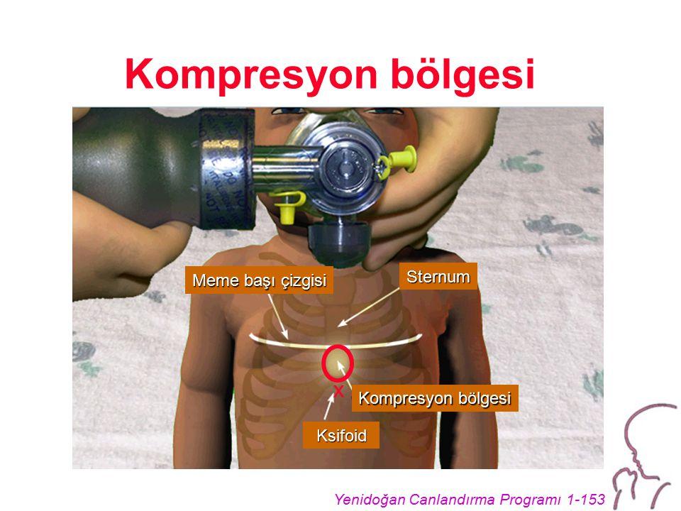 Yenidoğan Canlandırma Programı 1-153 Kompresyon bölgesi Meme başı çizgisi Kompresyon bölgesi x Sternum Ksifoid