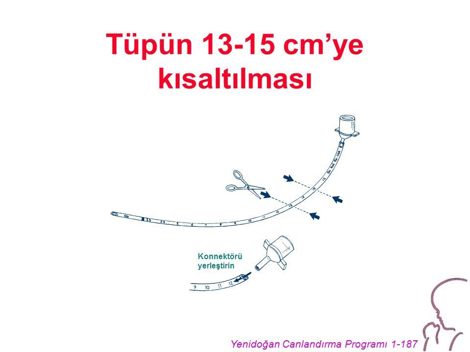 Yenidoğan Canlandırma Programı 1-187 Tüpün 13-15 cm'ye kısaltılması