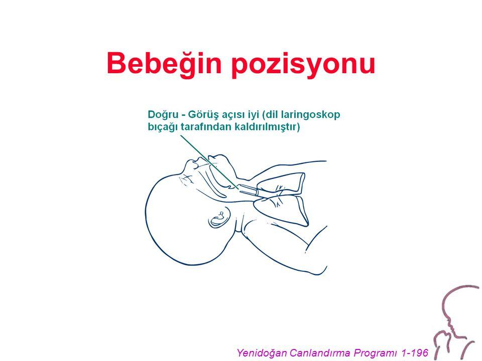 Yenidoğan Canlandırma Programı 1-196 Bebeğin pozisyonu