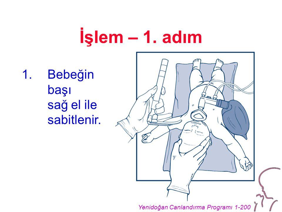 Yenidoğan Canlandırma Programı 1-200 İşlem – 1. adım 1.Bebeğin başı sağ el ile sabitlenir.