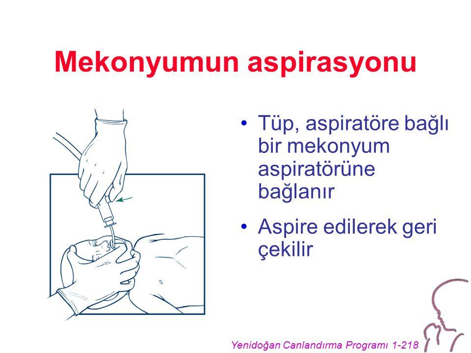 Yenidoğan Canlandırma Programı 1-218 Mekonyumun aspirasyonu Tüp, aspiratöre bağlı bir mekonyum aspiratörüne bağlanır Aspire edilerek geri çekilir