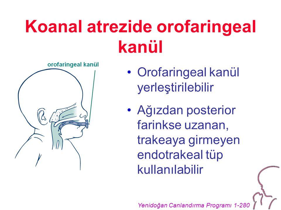 Yenidoğan Canlandırma Programı 1-280 Koanal atrezide orofaringeal kanül Orofaringeal kanül yerleştirilebilir Ağızdan posterior farinkse uzanan, trakeaya girmeyen endotrakeal tüp kullanılabilir