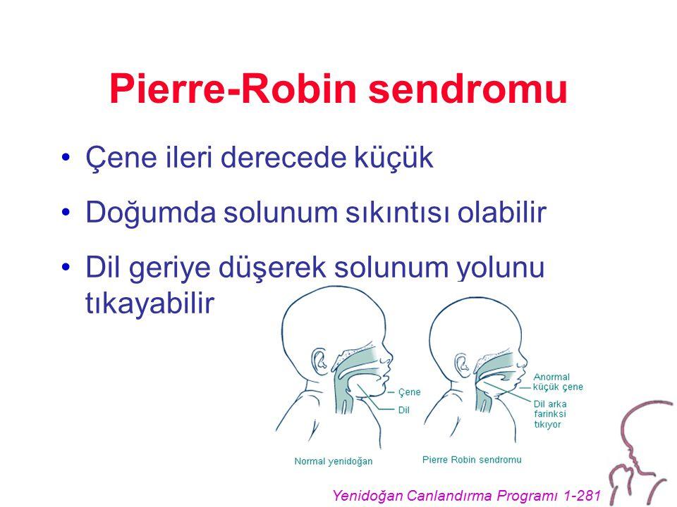 Yenidoğan Canlandırma Programı 1-281 Pierre-Robin sendromu Çene ileri derecede küçük Doğumda solunum sıkıntısı olabilir Dil geriye düşerek solunum yolunu tıkayabilir