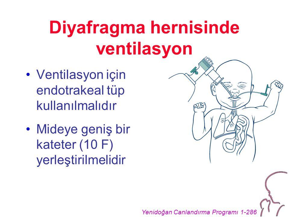 Yenidoğan Canlandırma Programı 1-286 Diyafragma hernisinde ventilasyon Ventilasyon için endotrakeal tüp kullanılmalıdır Mideye geniş bir kateter (10 F