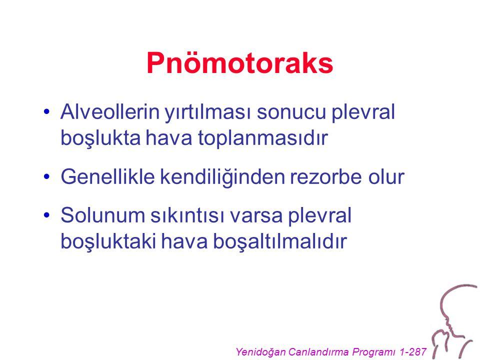 Yenidoğan Canlandırma Programı 1-287 Pnömotoraks Alveollerin yırtılması sonucu plevral boşlukta hava toplanmasıdır Genellikle kendiliğinden rezorbe ol