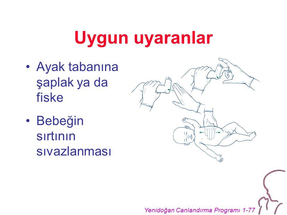 Yenidoğan Canlandırma Programı 1-77 Uygun uyaranlar Ayak tabanına şaplak ya da fiske Bebeğin sırtının sıvazlanması