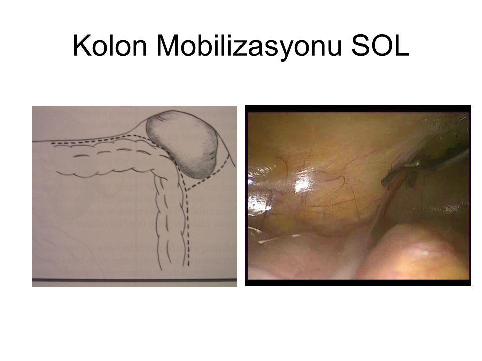 Kolon Mobilizasyonu SOL