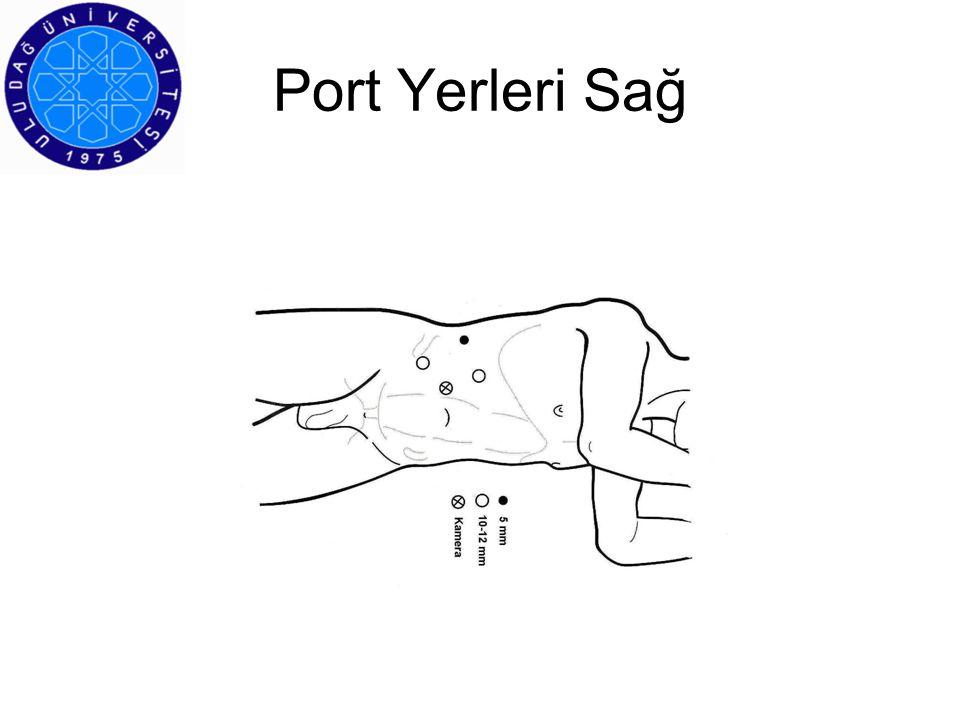 Port Yerleri Sağ