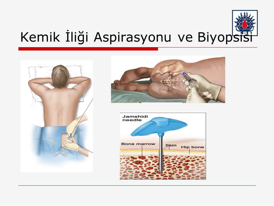 Kemik İliği Aspirasyonu ve Biyopsisi
