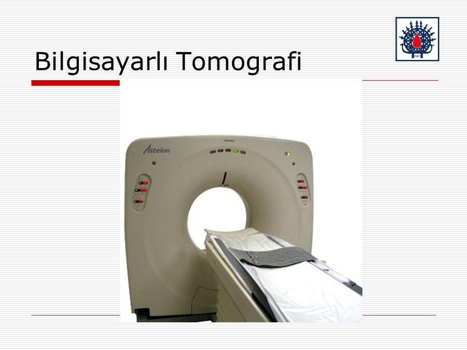 Bilgisayarlı Tomografi