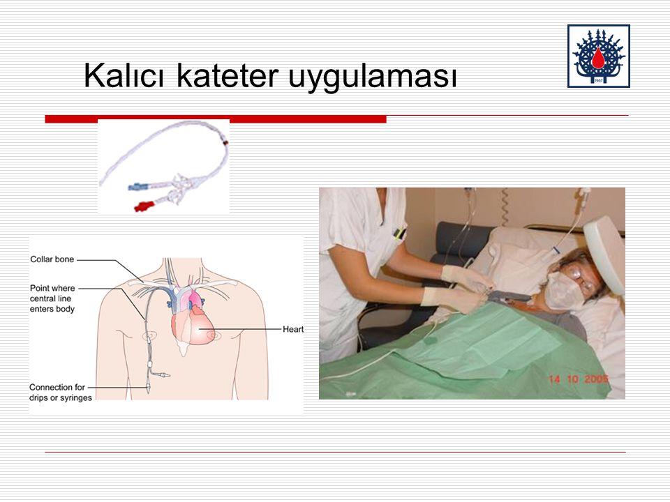 Kalıcı kateter uygulaması