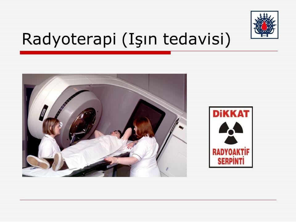 Radyoterapi (Işın tedavisi)