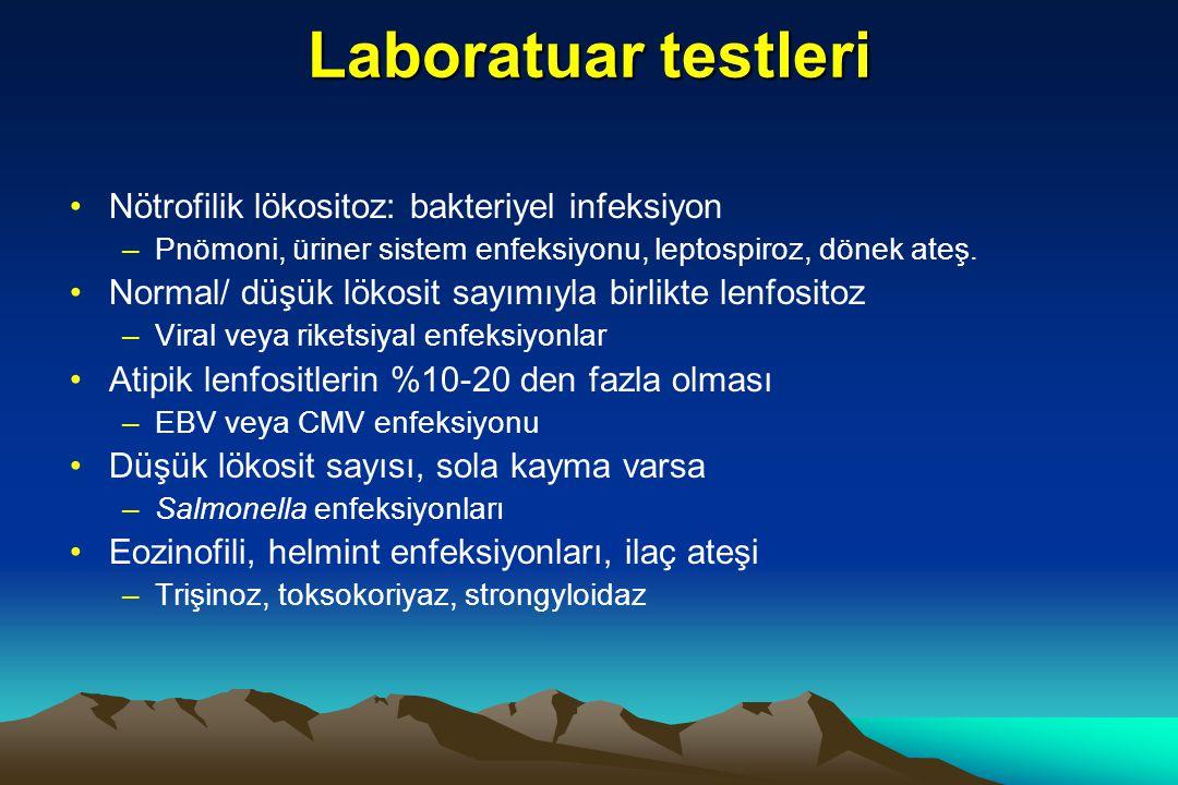 Laboratuar testleri Nötrofilik lökositoz: bakteriyel infeksiyon –Pnömoni, üriner sistem enfeksiyonu, leptospiroz, dönek ateş.