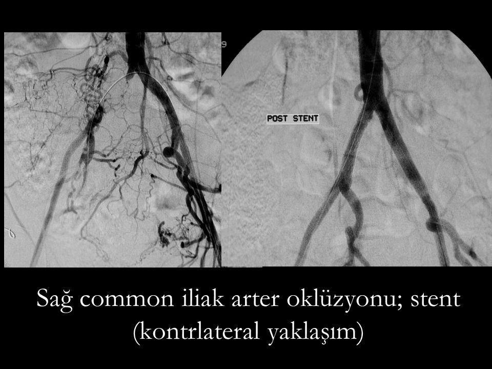 Sağ common iliak arter oklüzyonu; stent (kontrlateral yaklaşım)
