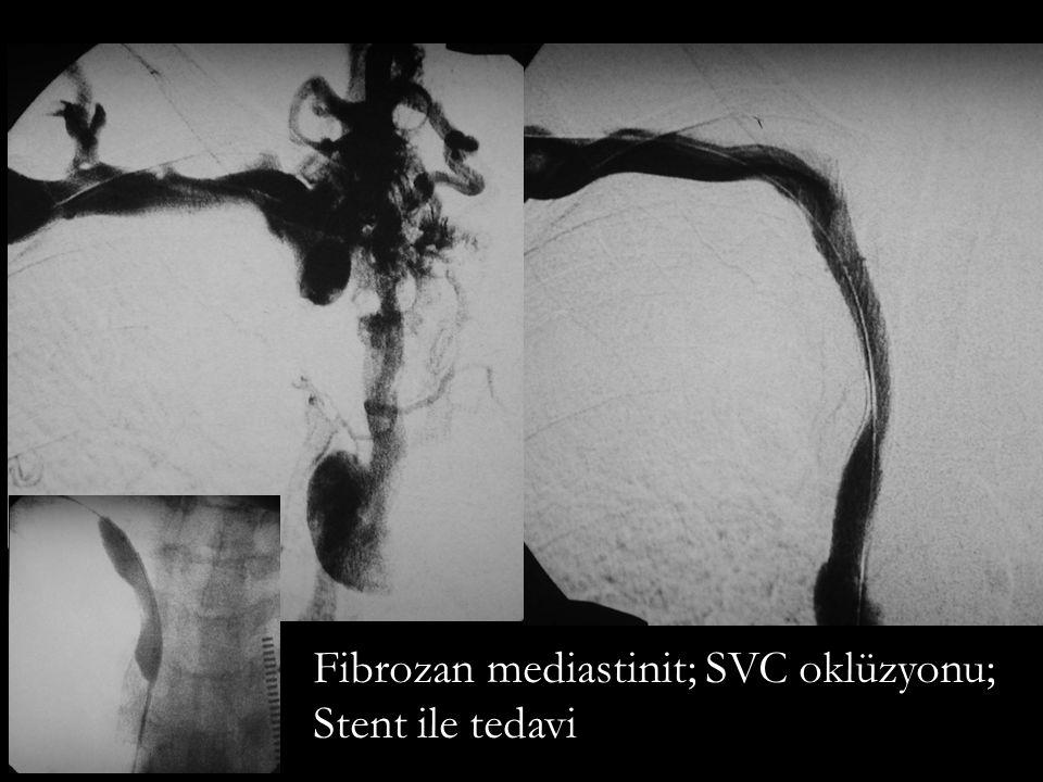 Sağ SFA oklüzyon; stent