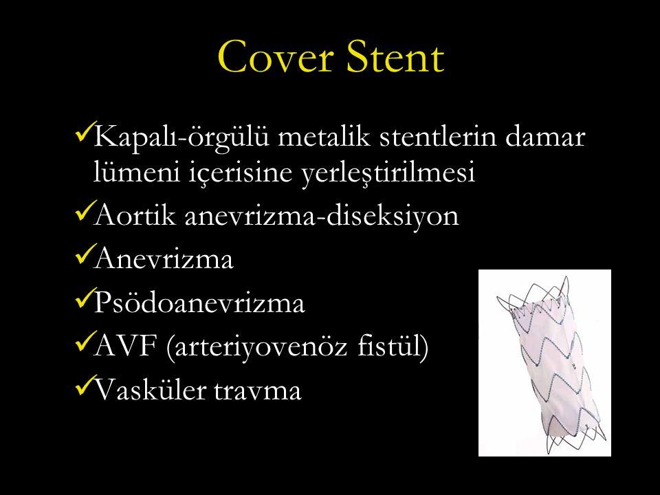 Cover Stent Kapalı-örgülü metalik stentlerin damar lümeni içerisine yerleştirilmesi Aortik anevrizma-diseksiyon Anevrizma Psödoanevrizma AVF (arteriyovenöz fistül) Vasküler travma
