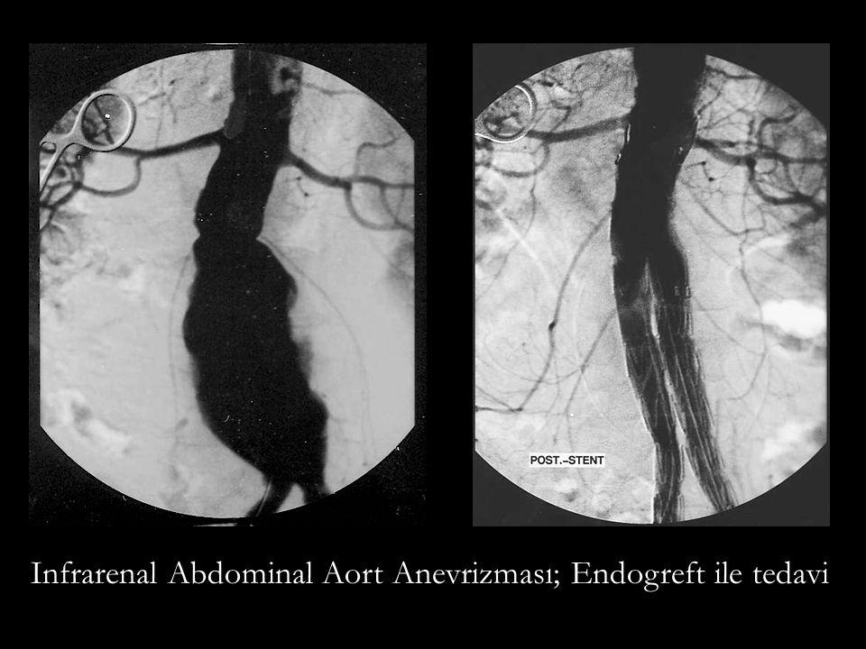 Infrarenal Abdominal Aort Anevrizması; Endogreft ile tedavi