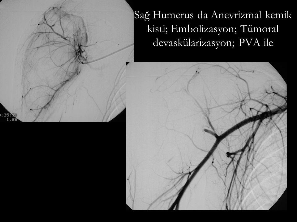 Embolizasyon Endovasküler transkateter veya Perkütan Emboloterapi/devaskülarizasyon Embolizan ajanlar: Onyx Histoakril (japon yapıştırıcısı) Polivinil