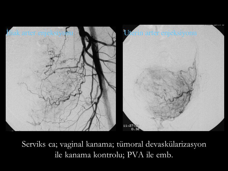 Serviks ca; vaginal kanama; tümoral devaskülarizasyon ile kanama kontrolu; PVA ile emb.