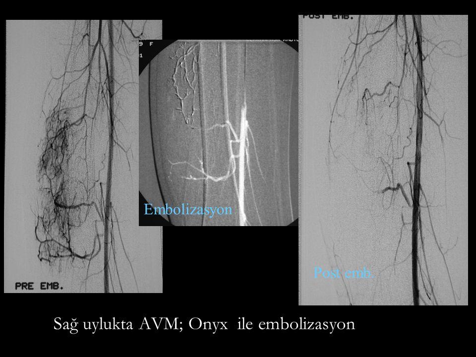 Sağ uylukta AVM; Onyx ile embolizasyon Post emb. Embolizasyon