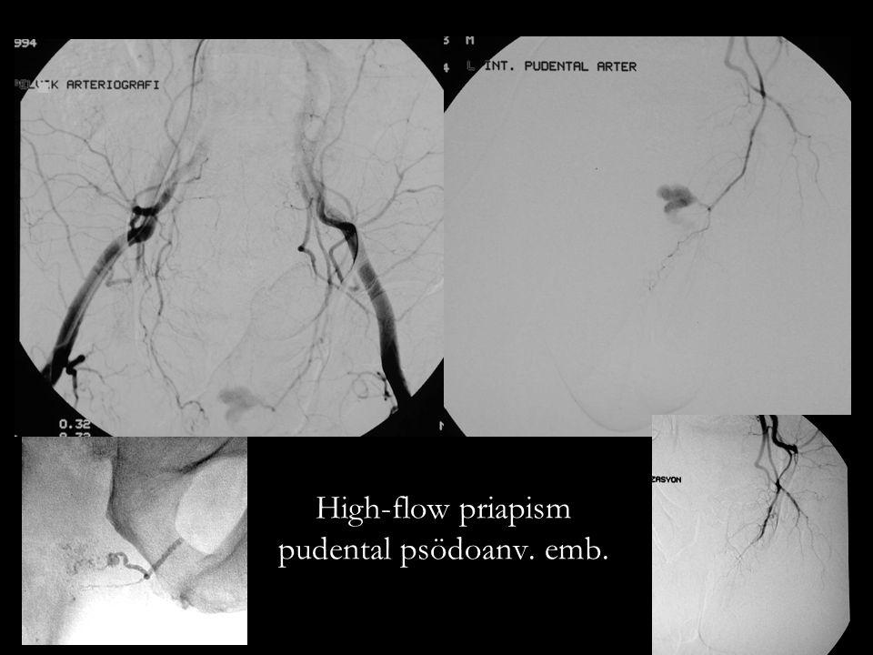 High-flow priapism pudental psödoanv. emb.