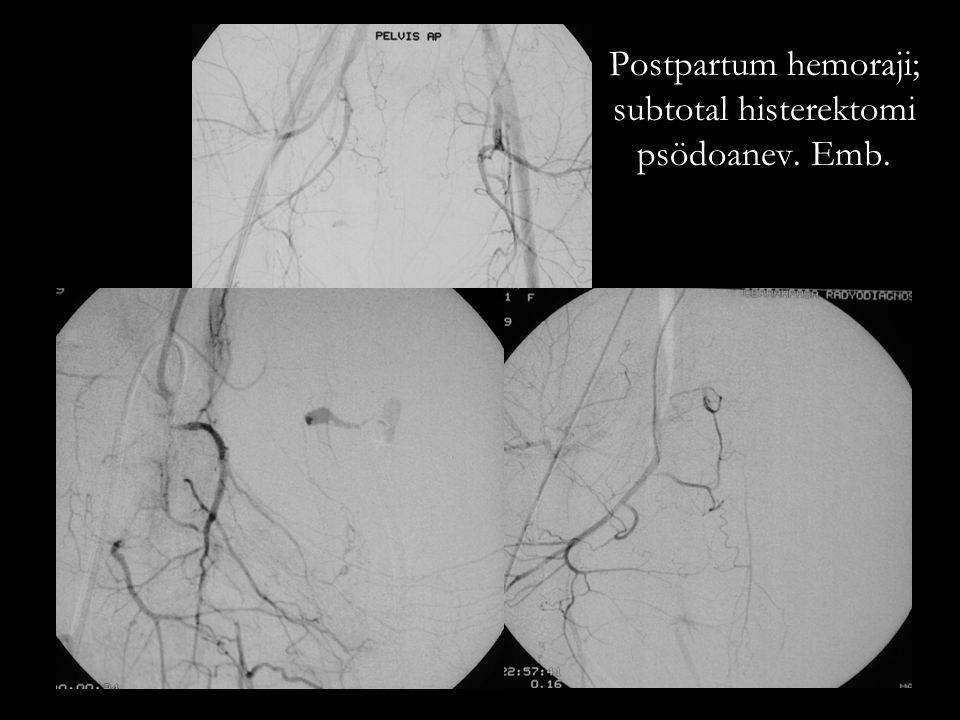 Postpartum hemoraji; subtotal histerektomi psödoanev. Emb.