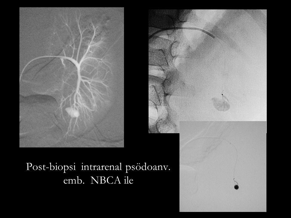 Post-biopsi intrarenal psödoanv. emb. NBCA ile