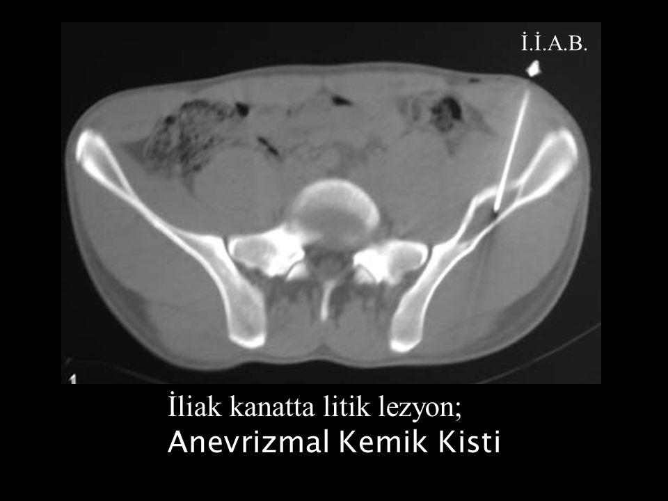 Femur distalinde sklerotik lezyon; Yüksek grade'li osteosarkom PERTUCUT