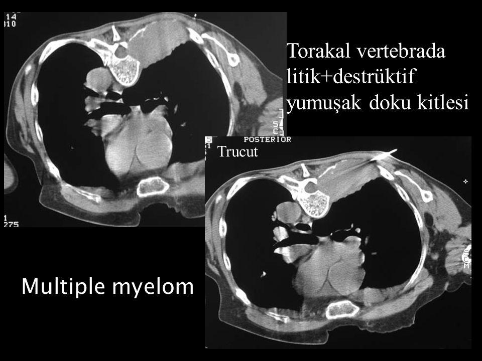 Torakal vertebrada litik+destrüktif yumuşak doku kitlesi Trucut Multiple myelom