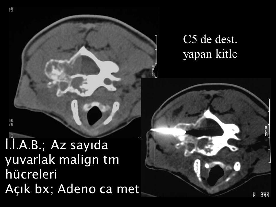C5 de dest. yapan kitle İ. İ.A.B.; Az sayıda yuvarlak malign tm hücreleri Açık bx; Adeno ca met