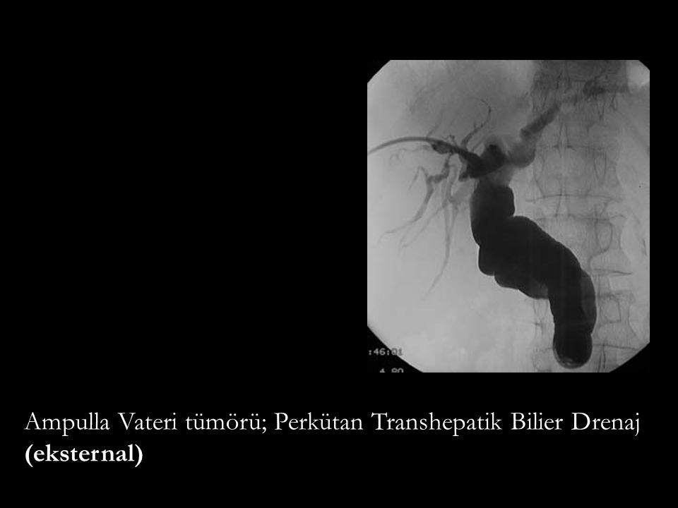 Ampulla Vateri tümörü; Perkütan Transhepatik Bilier Drenaj (eksternal)