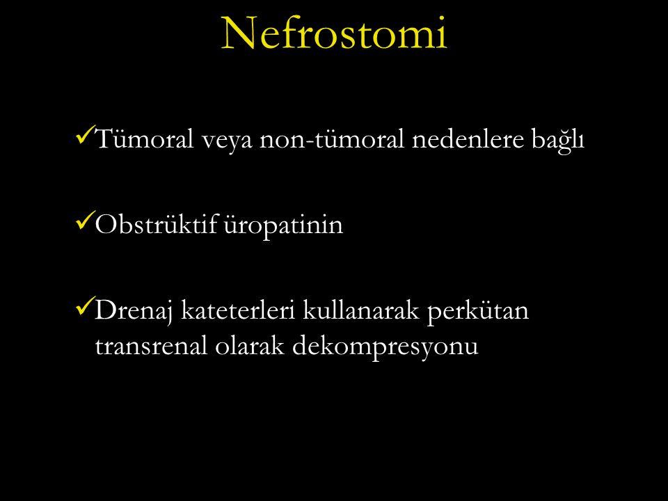 Nefrostomi Tümoral veya non-tümoral nedenlere bağlı Obstrüktif üropatinin Drenaj kateterleri kullanarak perkütan transrenal olarak dekompresyonu