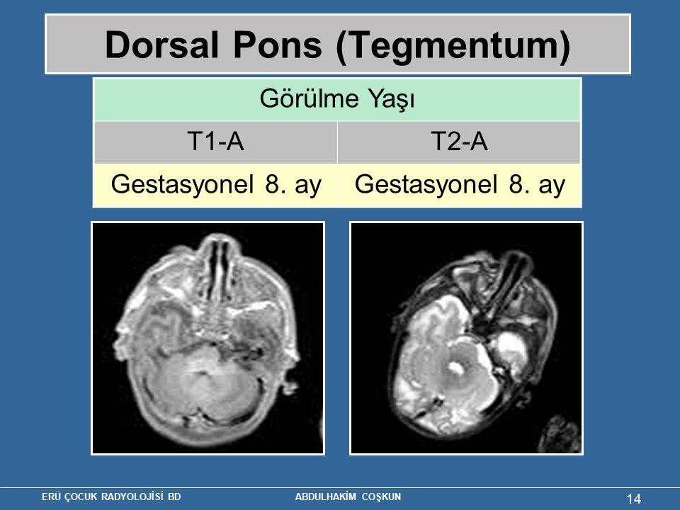 ERÜ ÇOCUK RADYOLOJİSİ BD ABDULHAKİM COŞKUN 14 Dorsal Pons (Tegmentum) Görülme Yaşı T1-AT2-A Gestasyonel 8. ay
