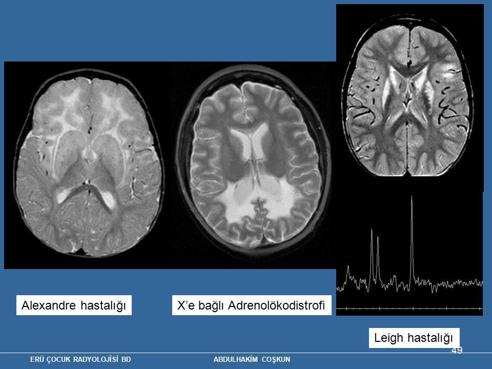 ERÜ ÇOCUK RADYOLOJİSİ BD ABDULHAKİM COŞKUN 49 Alexandre hastalığıX'e bağlı Adrenolökodistrofi Leigh hastalığı