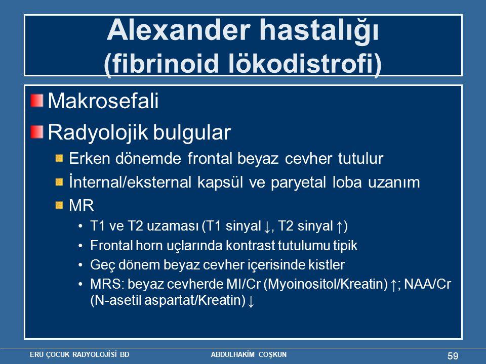 ERÜ ÇOCUK RADYOLOJİSİ BD ABDULHAKİM COŞKUN Alexander hastalığı (fibrinoid lökodistrofi) Makrosefali Radyolojik bulgular Erken dönemde frontal beyaz ce